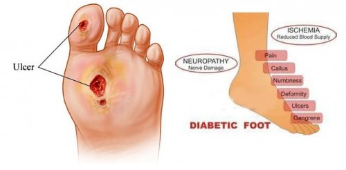 Foot Complications (Diabetic Foot)