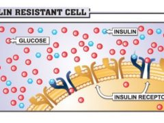 Insulin Resistance: What is It?