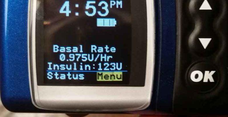 Basal Rate on an Insulin Pump