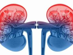 Diabetic Kidney Disease (Nephropathy)