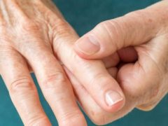 A Connection between Diabetes and Arthritis