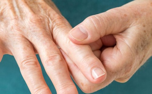 A Connection between Diabetes and Arthritis