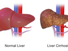 diabetes and liver cirrhosis