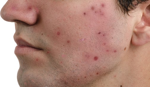 The Link between Diabetes and Acne
