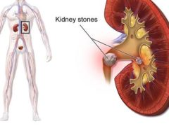 Diabetes Mellitus and Kidney Stones