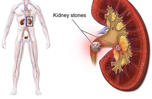 Diabetes Mellitus and Kidney Stones