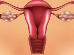 Polycystic Ovary Syndrome (PCOS) and Diabetes
