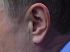 Link Between Hearing Loss and Diabetes