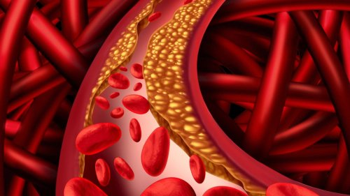 How to Lower Your Cholesterol Naturally