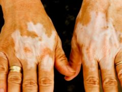 diabetes skin conditions